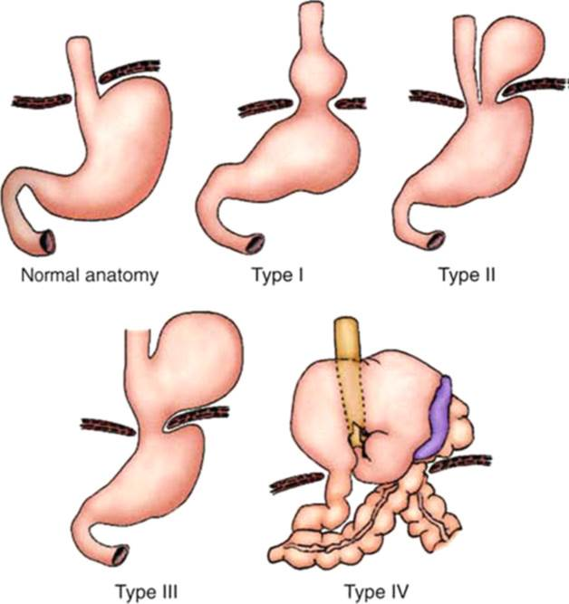 Natural Cures For Hiatal Hernia Acid Reflux